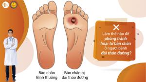 Làm cách nào để phòng tránh hoại tử bàn chân ở người bệnh Đái tháo đường?
