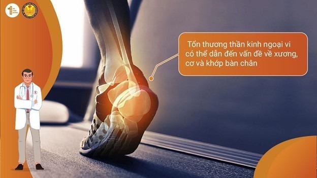 Vì sao người tiểu đường thường mất cảm giác ở chân? 3