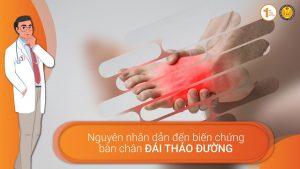 Nguyên nhân dẫn đến biến chứng bàn chân Đái Tháo Đường