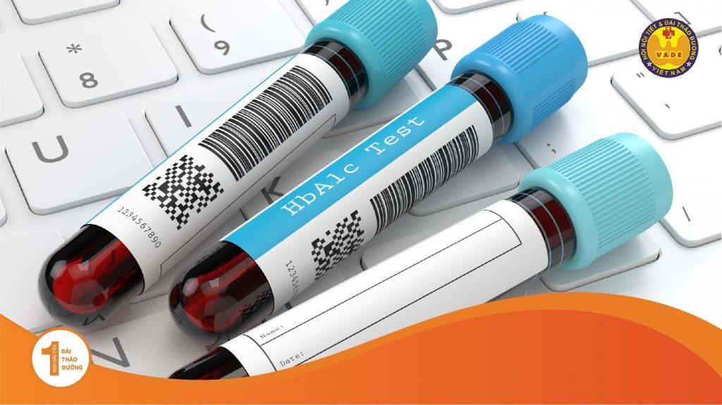 Các triệu chứng nhận biết và chuẩn đoán bệnh Đái Tháo Đường (bệnh tiểu đường) 2