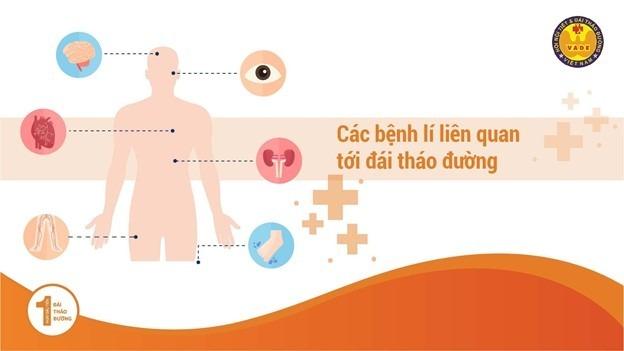 Độ phổ biến của bệnh Đái Tháo Đường (bệnh Tiểu Đường) trên Thế Giới và Việt Nam 2
