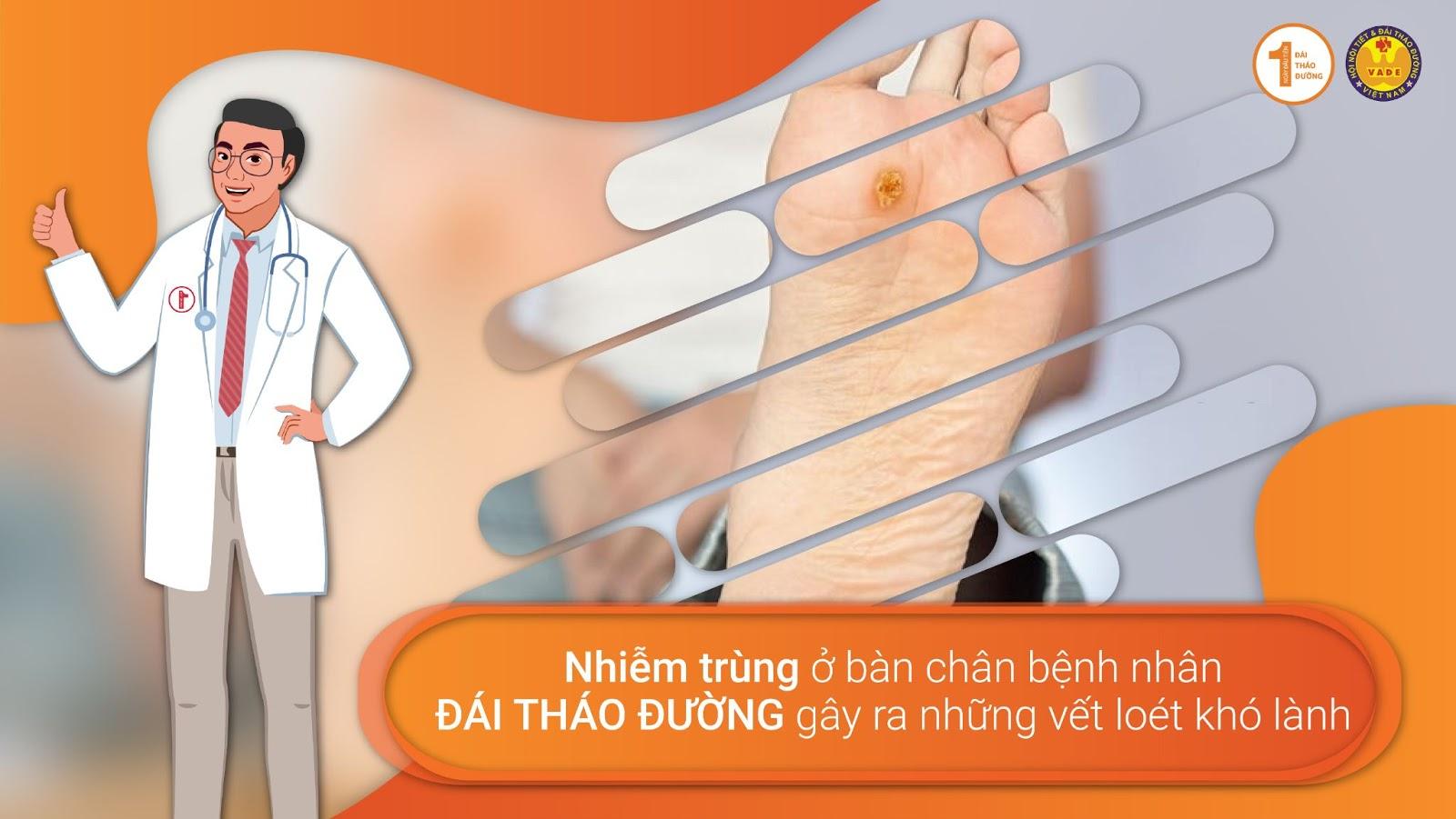 Nguyên nhân dẫn đến biến chứng bàn chân Đái Tháo Đường 3