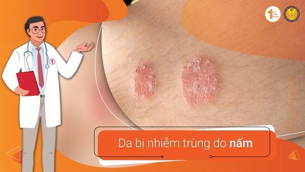 Phòng tránh nhiễm trùng da để có một làn da khỏe mạnh 2