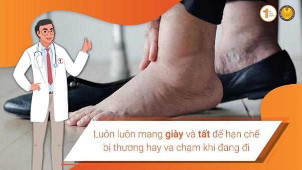 Chăm sóc mất cảm giác ở chân như thế nào là đúng? 1