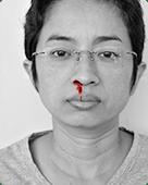 Cẩn trọng khi bị chảy máu mũi