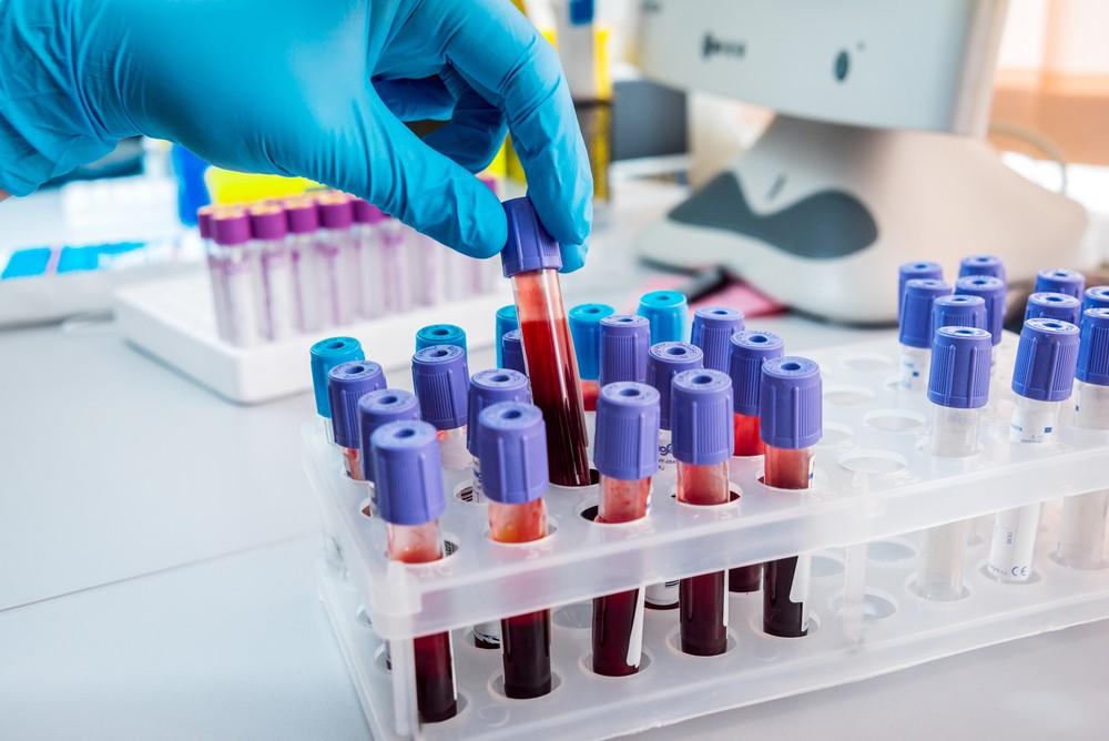 Xét nghiệm chuyên sâu về tăng huyết áp 2