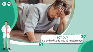 Đột quỵ – Sự phổ biến, dấu hiệu và nguyên nhân