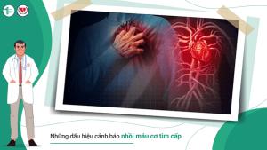 Những dấu hiệu cảnh báo nhồi máu cơ tim cấp