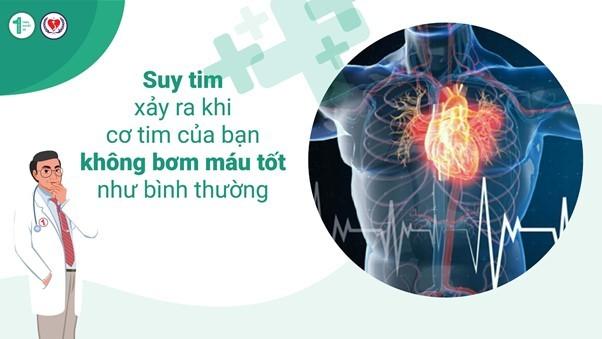 Bệnh Suy tim có nguy hiểm và ảnh hưởng đến tính mạng không 3