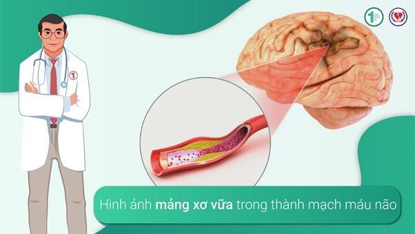 Những tác động xấu của Tăng huyết áp lên não bộ 2