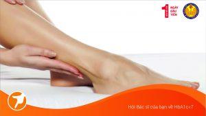 7 Bước chăm sóc bàn chân ở bệnh nhân đái tháo đường